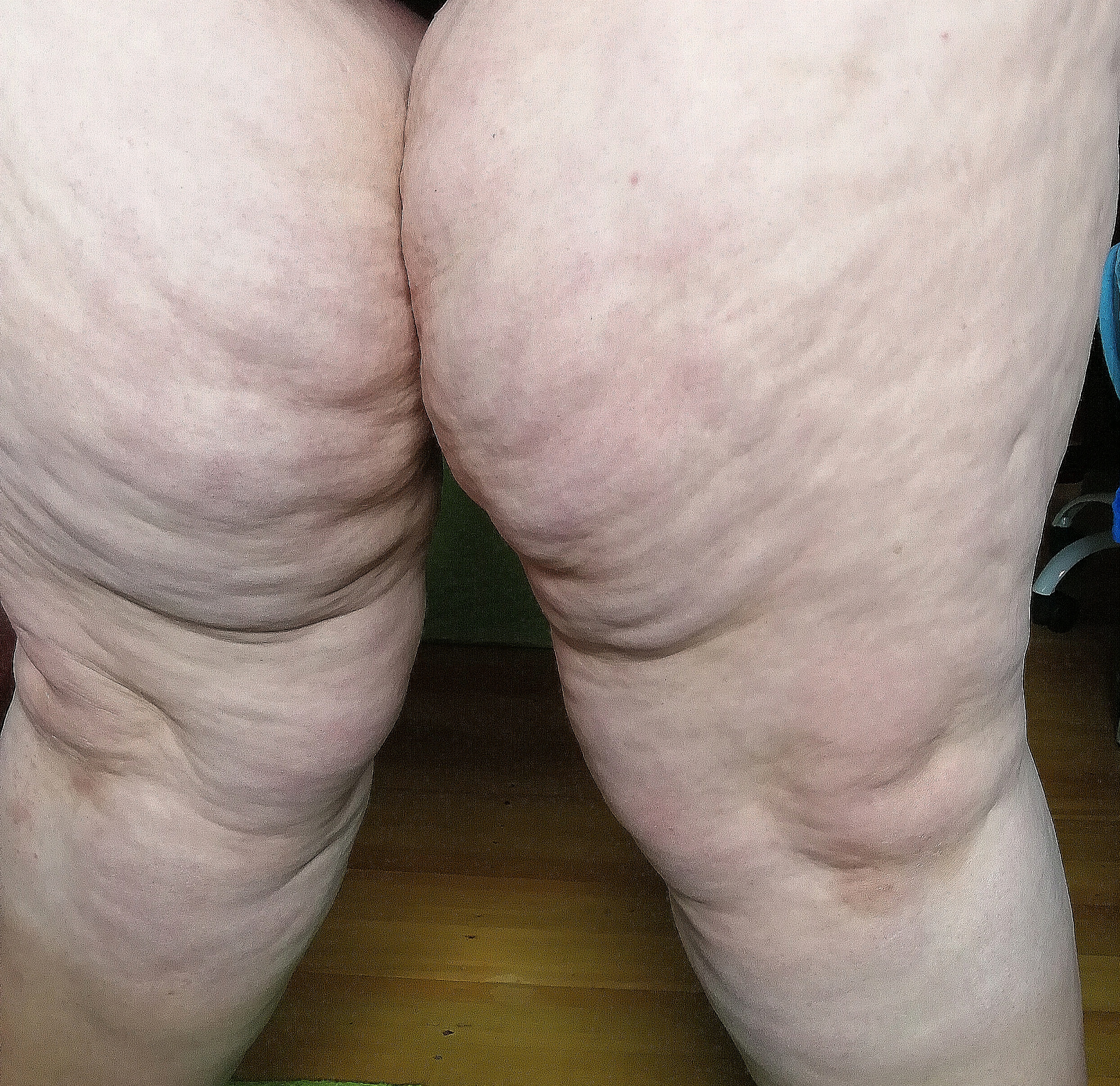 It's Lipoedema, and it's not always a weight issue!