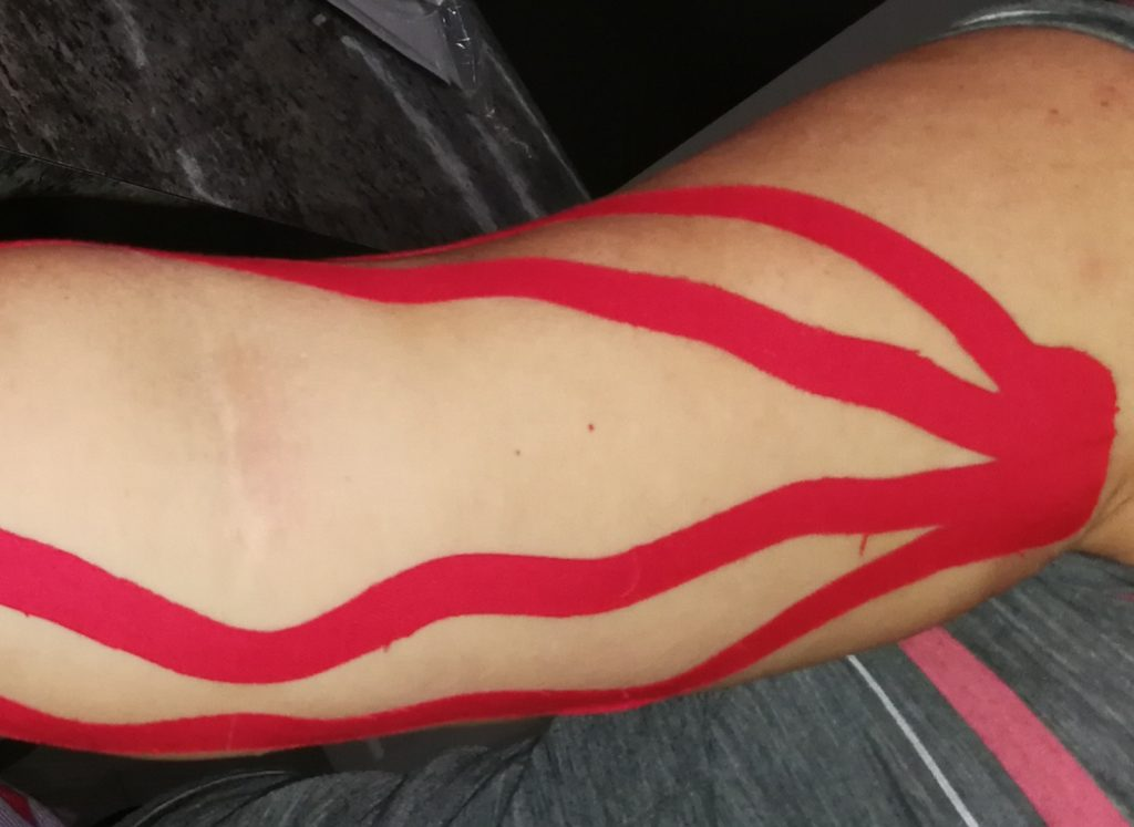 Taping for multi - purpose such as to prevent injuries, support a joint/movements, pain management or even to reduce swelling and improve Lymph flow.